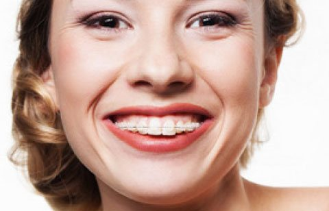 ceramic-clear-braces